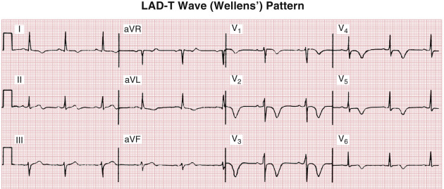 T Wave Inversion - an overview | ScienceDirect Topics