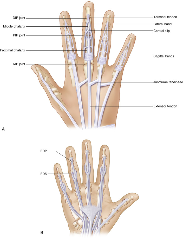 Finger Amputation An Overview Sciencedirect Topics