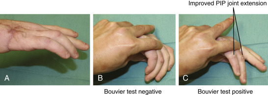 Ulnar Nerve Paralysis - an overview | ScienceDirect Topics