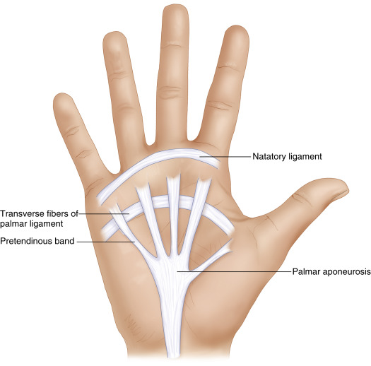 palmar aponeurosis an overview sciencedirect topics