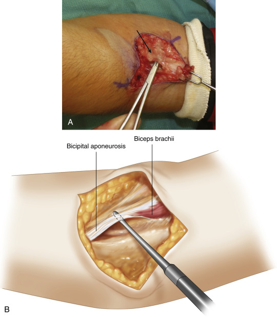 how does an aponeurosis differ from a tendon structurally