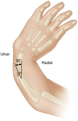 Ulnar Shaft - an overview | ScienceDirect Topics