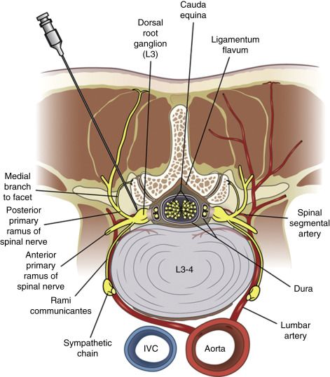 Transforaminal Epidural Steroid Injections and Selective Nerve Root ...