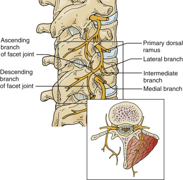 Facet Syndrome Sciencedirect
