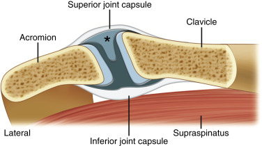 Ultrasound-Guided Musculoskeletal Injections—Shoulder, Hip