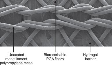 Mesh: Material Science of Hernia Repair - ScienceDirect