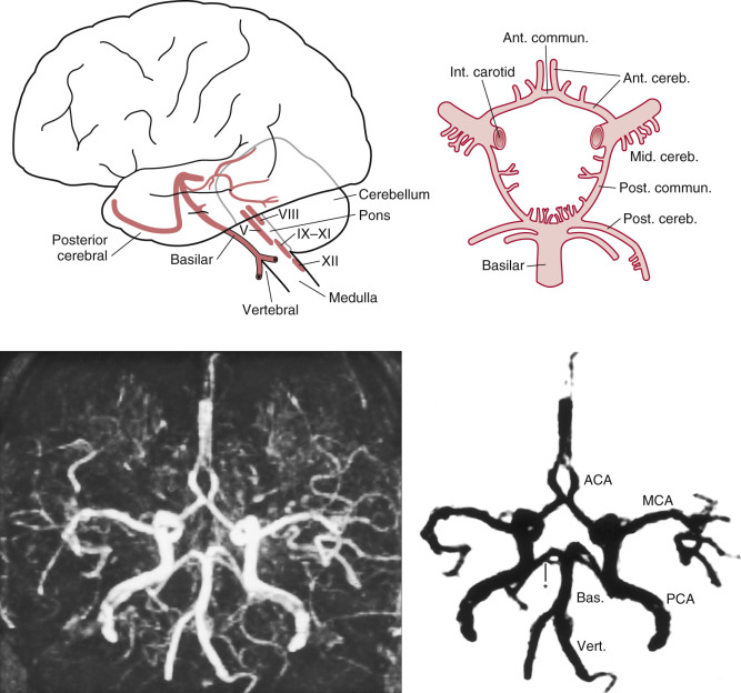 Circumoral Paresthesia - an overview   ScienceDirect Topics