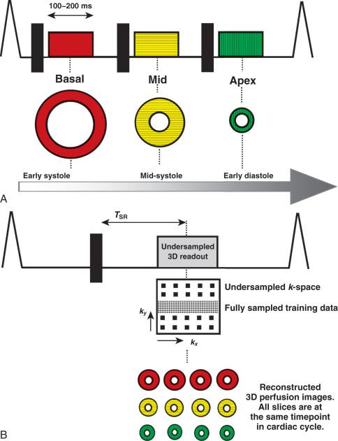 Myocardial Perfusion Cardiovascular Magnetic Resonance