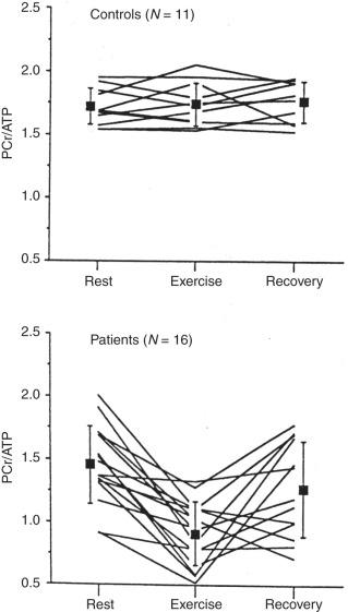 Cardiac Magnetic Resonance Spectroscopy - ScienceDirect