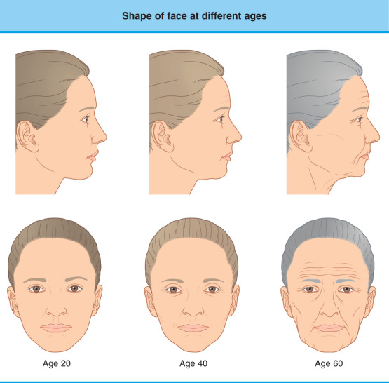 Skin Wrinkle - an overview | ScienceDirect Topics