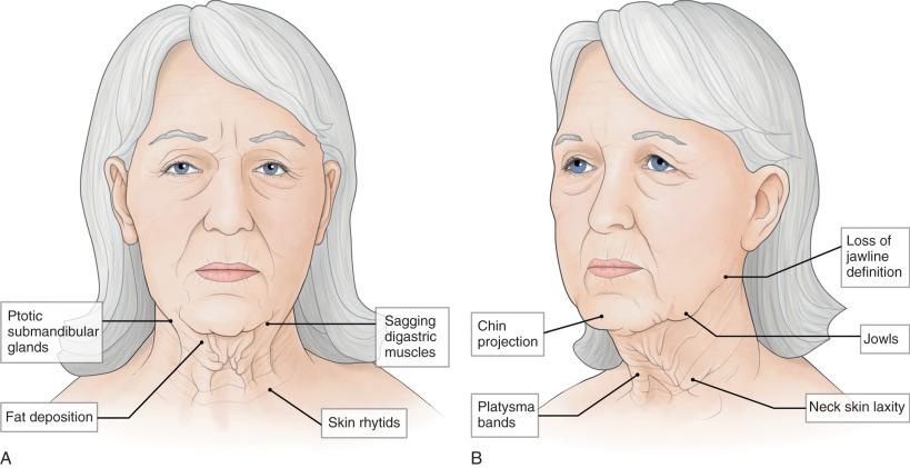 Skin Turgor - an overview   ScienceDirect Topics