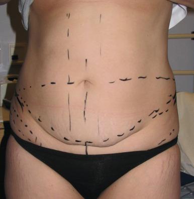 Abdominoplasty - an overview   ScienceDirect Topics