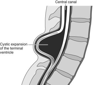 Neural Tube Development - ScienceDirect