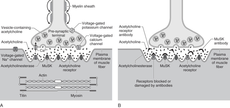 Levels Above Lower Motor Neuron To Neuromuscular Junction