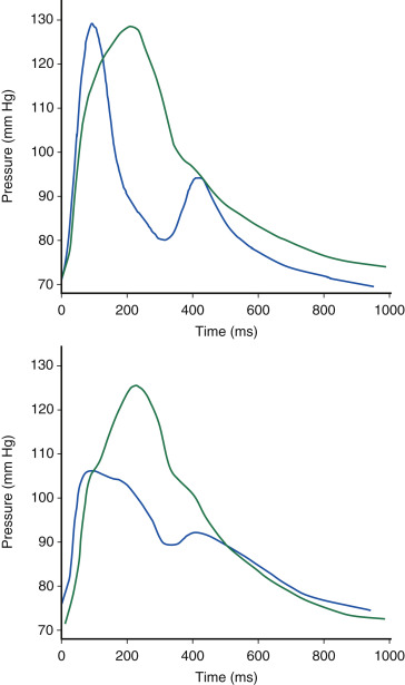 Pulse Pressure - an overview | ScienceDirect Topics