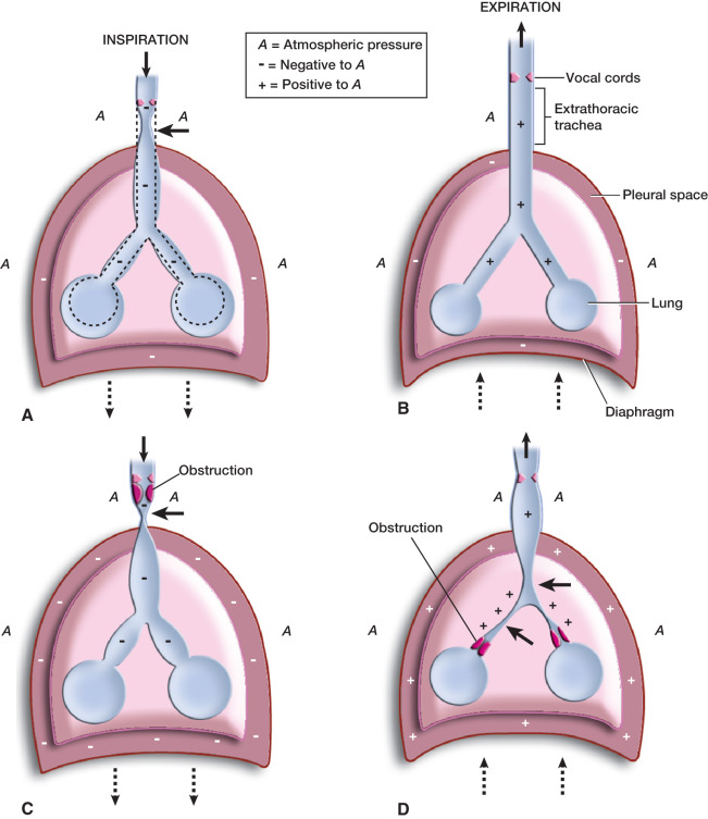 Trachea Pressure - an overview | ScienceDirect Topics