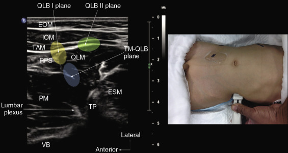 Ultrasound-Guided Regional Anesthesia - ScienceDirect