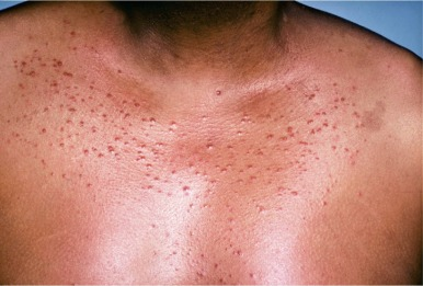 Steroid Acne - an overview | ScienceDirect Topics