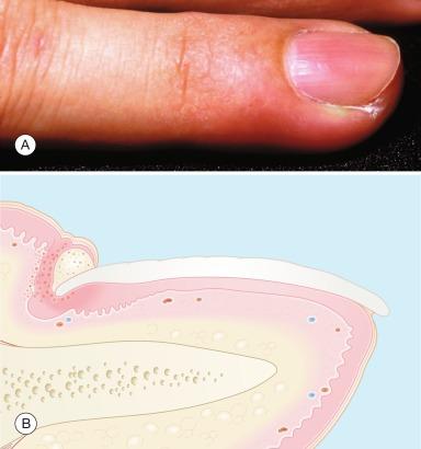 Paronychia - an overview | ScienceDirect Topics