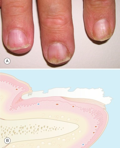 Onychomycosis - an overview | ScienceDirect Topics