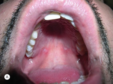 Aphthous Stomatitis - an overview | ScienceDirect Topics