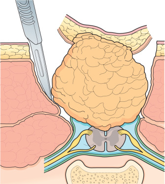 Spinal Lipoma - an overview | ScienceDirect Topics