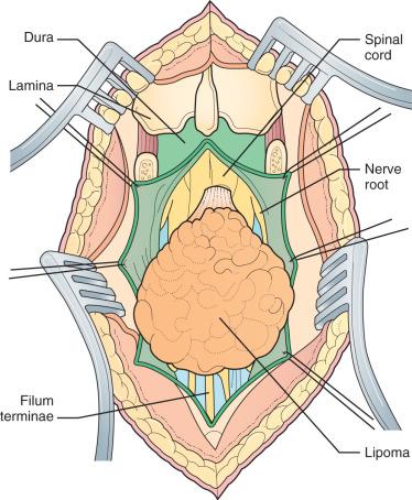 lipoma en lumbares