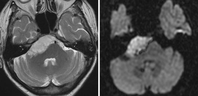 Cerebellopontine Angle Tumors - ScienceDirect