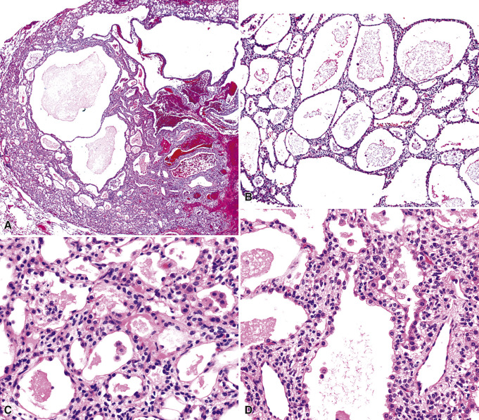Benign and Borderline Tumors of the Lungs and Pleura