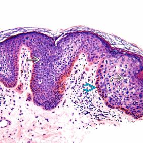 bowenoid papillomatosis)
