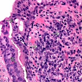 Az emlőmirigy intra-flow papilloma és kezelési módjai - Atipikus intraductalis papilloma icd 10