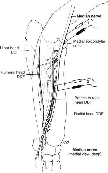 Nerve Conduction Velocity - an overview | ScienceDirect Topics