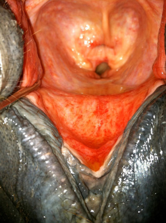 Vestibule of the Ear - an overview | ScienceDirect Topics