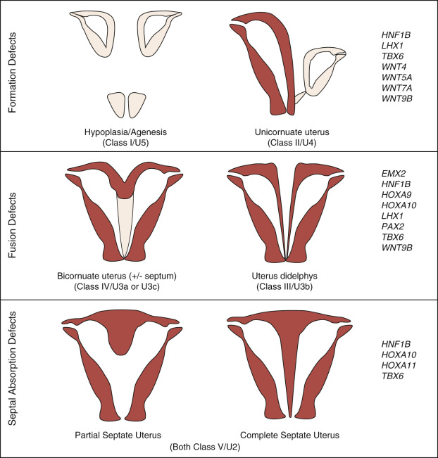 Uterus Didelphys An Overview Sciencedirect Topics