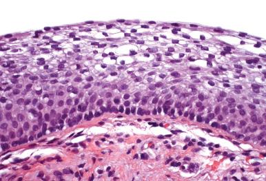 Atrophic Vaginitis - an overview | ScienceDirect Topics