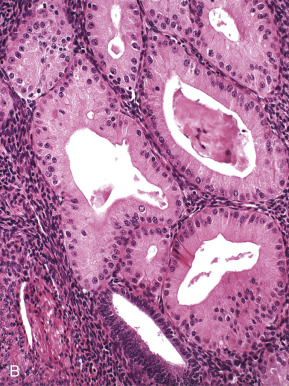 Eosinophilic An Overview Sciencedirect Topics