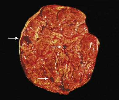 Manual Placenta Removal - an overview   ScienceDirect Topics