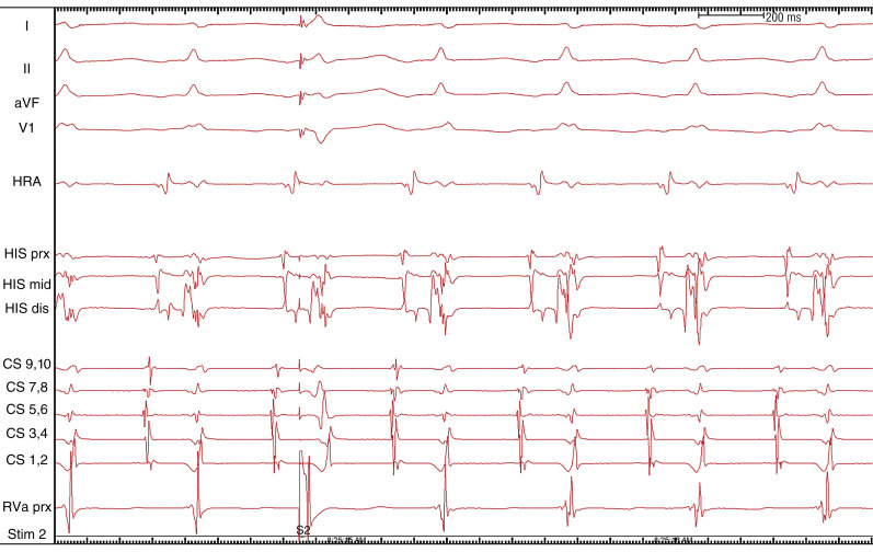 Left Ventricular Pacing - an overview | ScienceDirect Topics