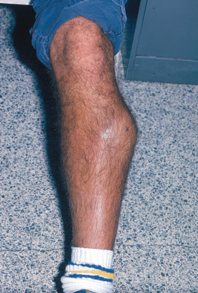 Bruise - an overview | ScienceDirect Topics