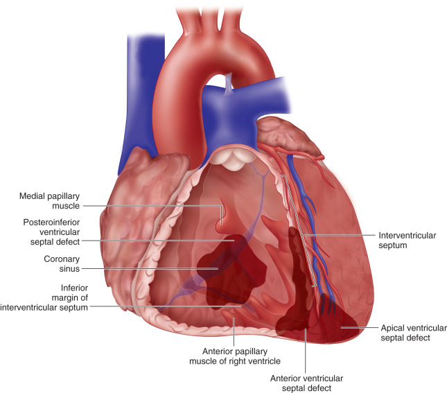 Postinfarction Ventricular Septal Defect Repair Sciencedirect