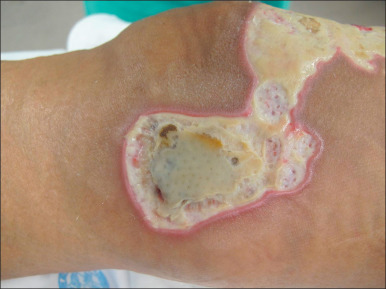 Burn Infection - an overview | ScienceDirect Topics