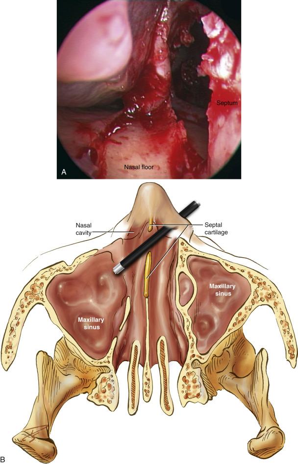 Nasal papilloma treatment Case Report