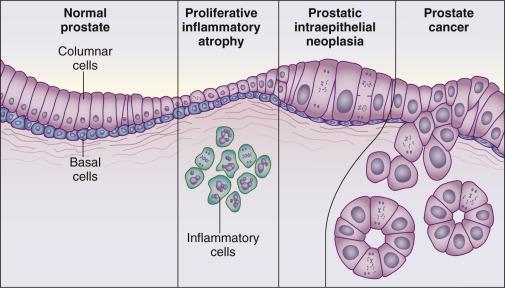 Prosztata fájdalom a csatlakoztatással Prostatitis számítás XP