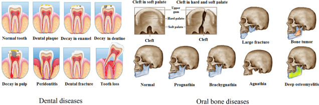 Mouth Injury - an overview | ScienceDirect Topics