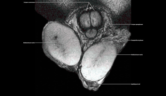 a pénisz corpus cavernosumának megnagyobbodása)