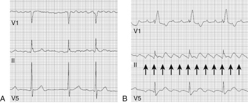 Atrial Fibrillation - an overview | ScienceDirect Topics