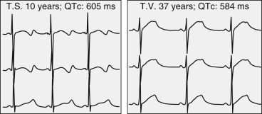 Long QT Syndrome - an overview | ScienceDirect Topics