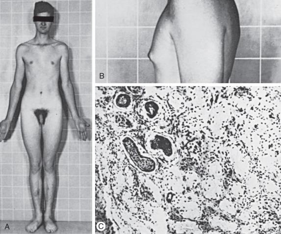 Eunuchoidism - an overview   ScienceDirect Topics