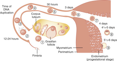 Female Infertility - ScienceDirect