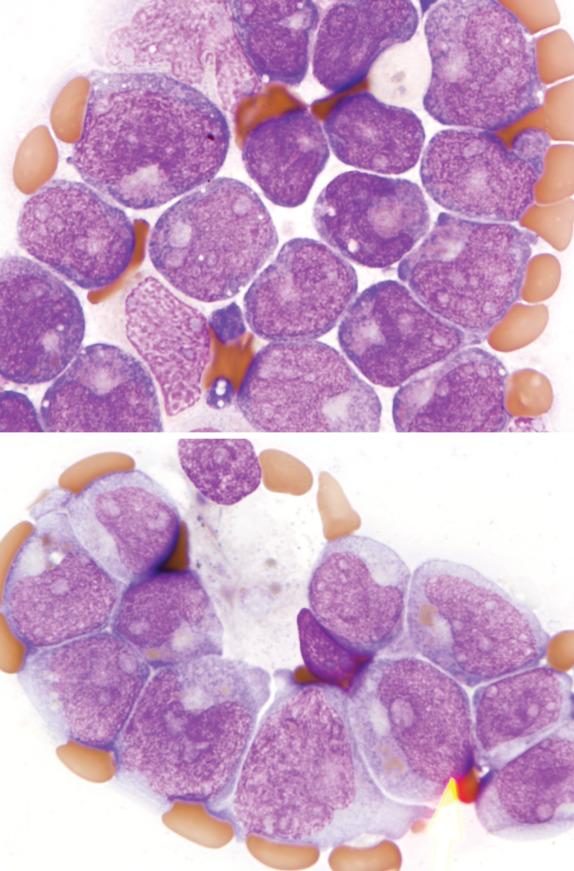 Acute Myeloid Leukemia - ScienceDirect